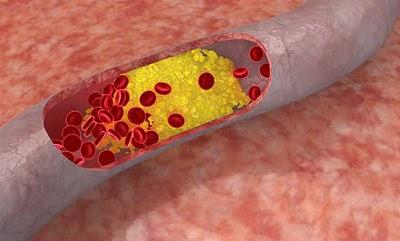 ¿Es malo el colesterol?